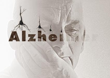 رویکردهای درمانی بیماری آلزایمر