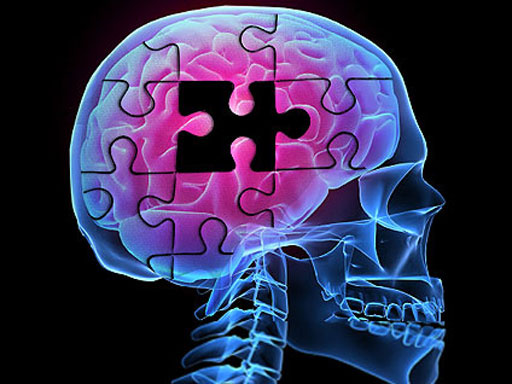 چگونه آلزایمر نگیریم؟