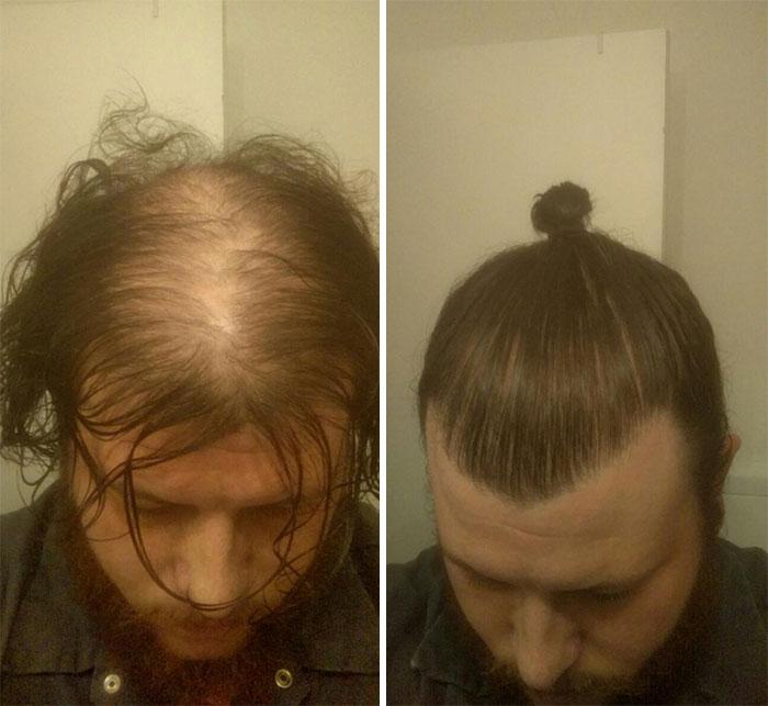 روش های بستن مو برای مخفی کردن ریزش مو!